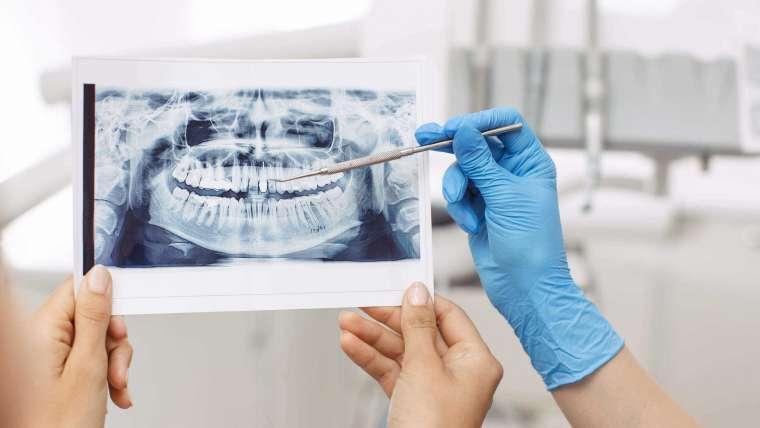 Tecnología dental avanzada